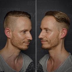 Schönheit Guter Friseur in Essen: PAVO Friseure - ✂️ Der Undercut – Ein