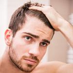 Die Besten Tricks Um Geheimratsecken Zu Kaschieren – Frisur Bei Geheimratsecken Mann