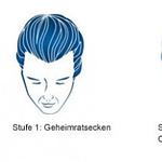 Geheimratsecken: Infos, Hilfe & Frisur  REGAINE® – Frisur Bei Geheimratsecken Mann