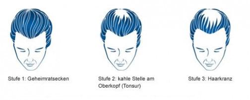 Geheimratsecken: Infos, Hilfe & Frisur  REGAINE® - Frisur Bei Geheimratsecken Mann