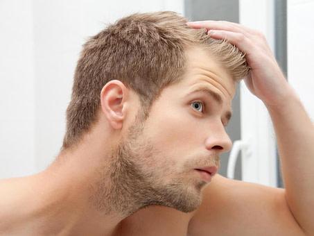 Nach oben Glatze: So kaschieren Sie kahle Stellen