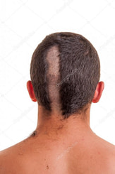 Luxus Hinterkopf Frisur Mann