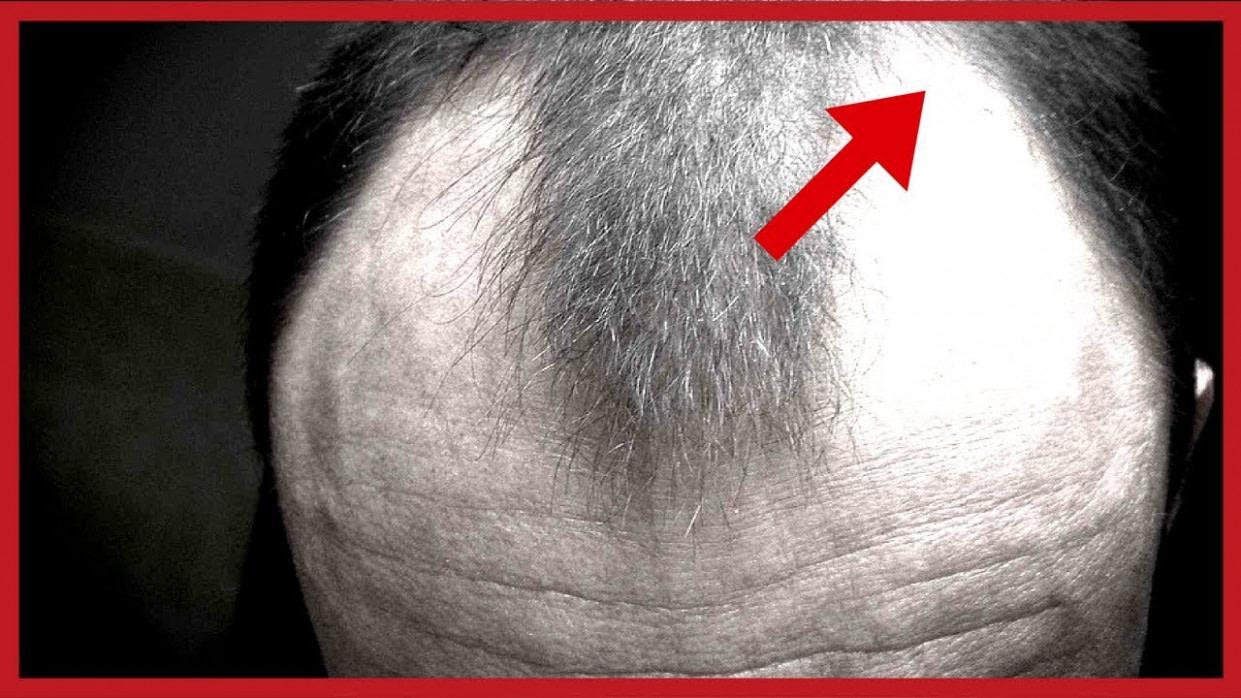 Frisuren Mit Geheimratsecken Männer - Quebartema - Frisuren Für ältere Männer Mit Geheimratsecken