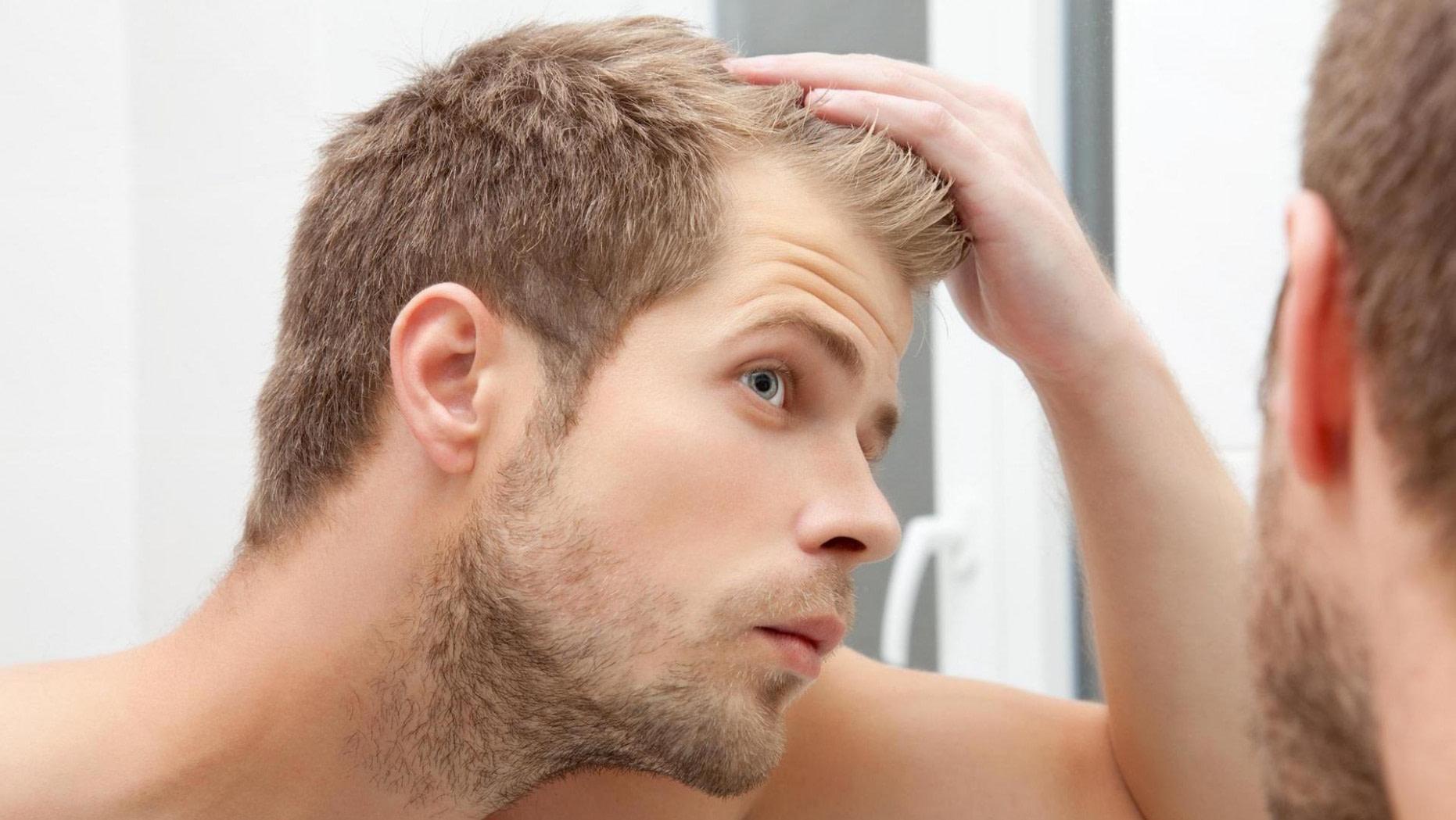 neu Glatze: So kaschieren Sie kahle Stellen - gute männer frisuren