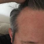 Hohe Stirn Und Geheimratsecken – Haartransplantation – Forum  – Frisur Hinterkopf Mann