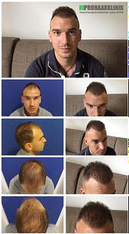 Luxus Haartransplantation Vorher Nachher Bilder der PROHAARKLINIK Ungarn