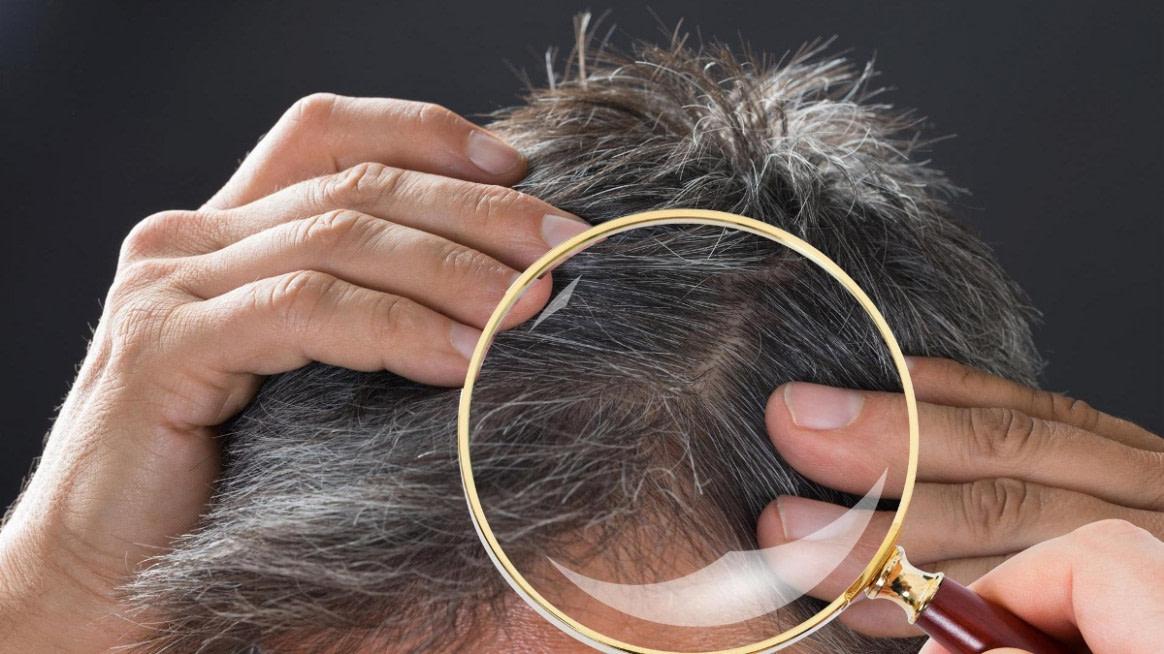 Haarausfall: Das Sollten Männer Nicht Tun - Kurzschnitt Frisuren Männer