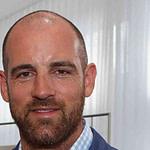 Diese Promis Ließen Sich Haare Transplantieren – Frisuren Männer Lichtes Haar